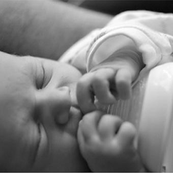 תינוק יונק מבקבוק (לשון קשורה והטיפול בה)